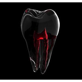 Extratie dinte temporar care nu necesita anestezie