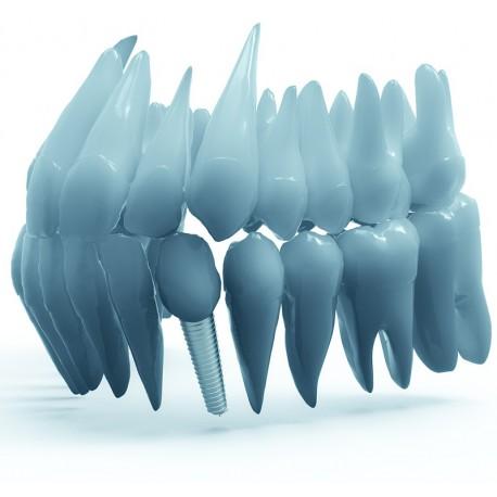 Inserare Implant dentar